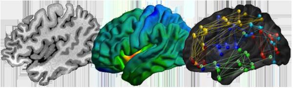 International Training Course on Neuroimaging of Epilepsy